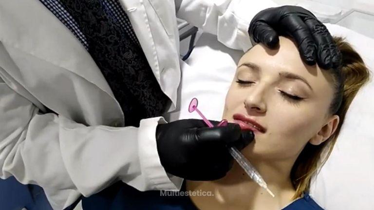 Aumento de labios - Corpobel