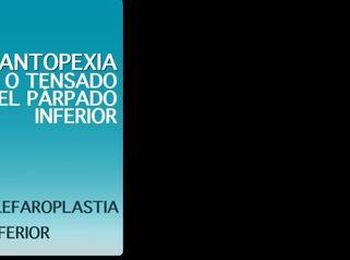 Cantopexia