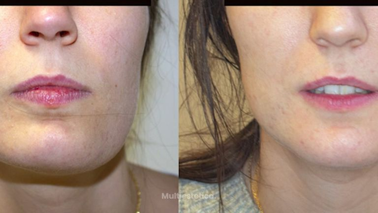 Tratamiento de Asimetría facial / Facial Asymmetry treatment