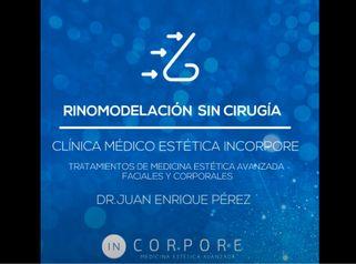 Tratamiento de Rinomodelación sin Cirugía