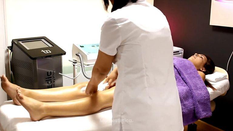 La vacumterapia es un tratamiento antigrasa mínimamente efectivo