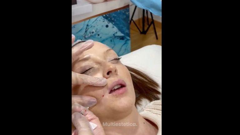 Rejuvenecimiento facial - Dra. Any Ramírez