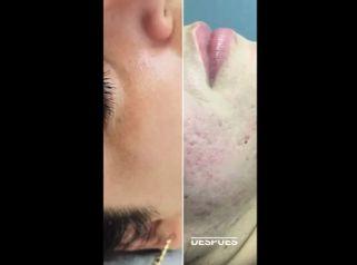 Tratamiento acné - Clínica Leben & Körper