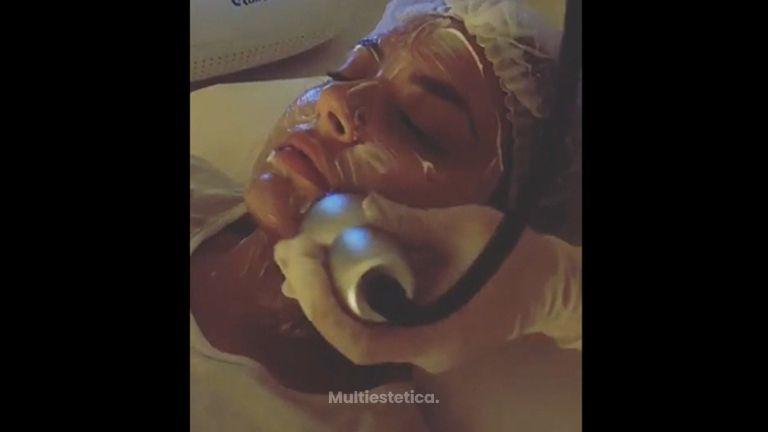 Radiofrecuencia facial - Absolute Beauty
