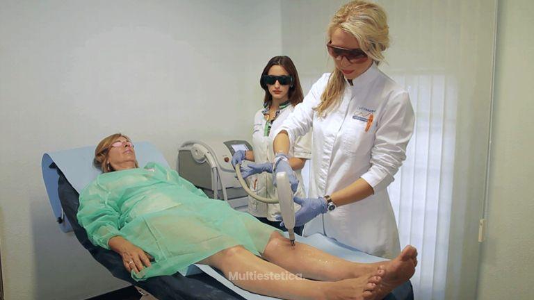 tratamiento varices