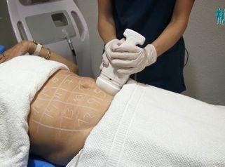 Testimonio de Maria Jose sobre hifu corporal y otros