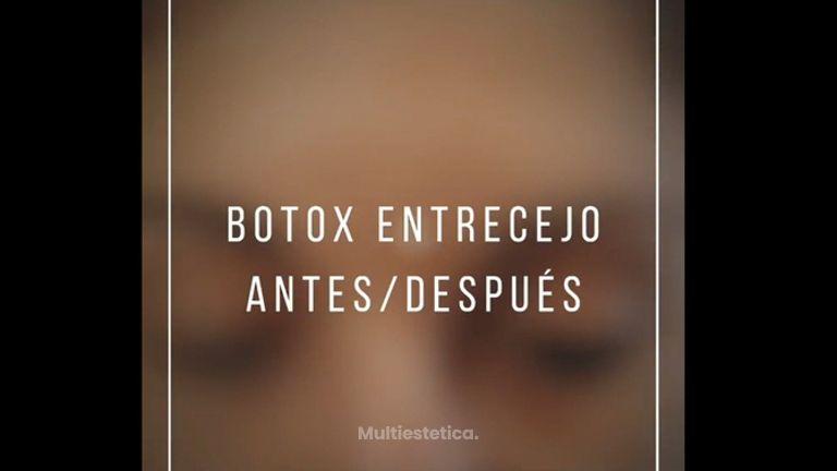 Bótox - Dr. Pau Bosacoma