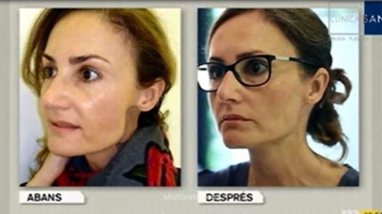Clínica Sanza presenta la reconstrucción facial a partir de células madre