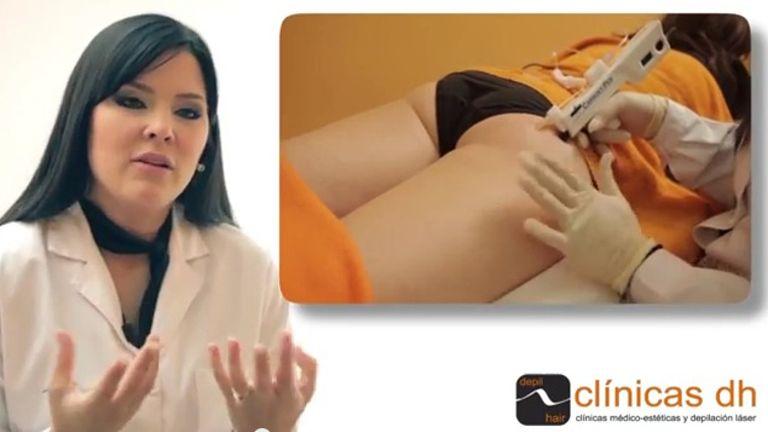 Mejora tu circulación con la carboxiterapia