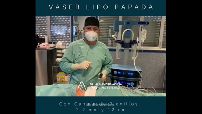 Liposucción de papada - AA CLINIC
