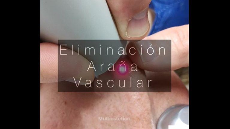 Láser Vascular - Clínica De Medicina Estética Córdoba