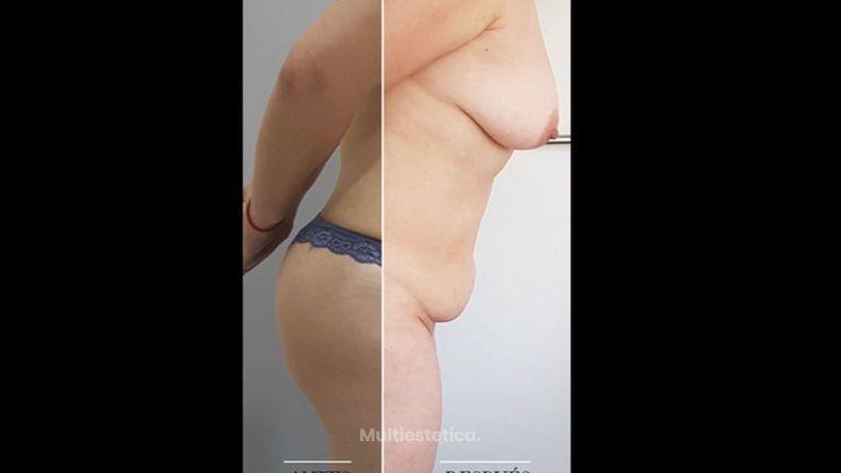 Abdominoplastia - Clínica Leben & Körper
