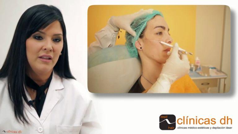 La hidroxiapatita cálcica Radiesse como relleno facial