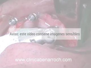 Implantes dentales múltiples