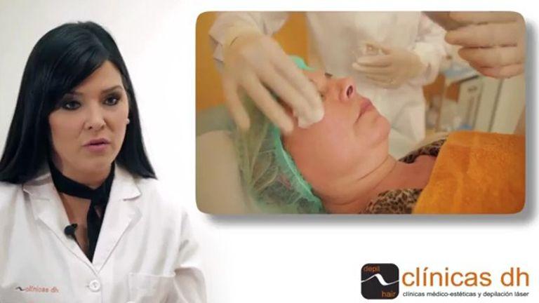 Peeling médico químico