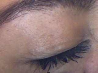 Tratamiento no quirúrgico de las ojeras
