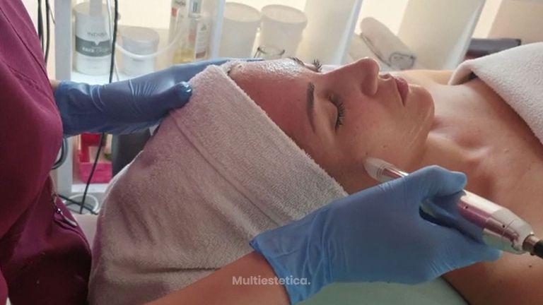 Microneedling - Clínica Senses