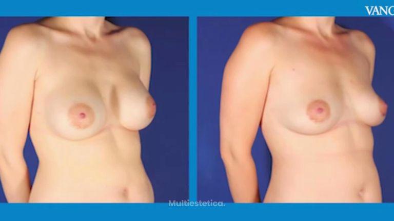 Cómo queda el pecho cuando se extrae un implante mamario