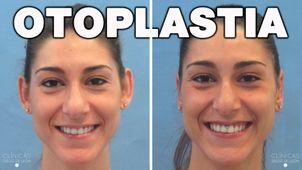 Antes y después de una otoplastia