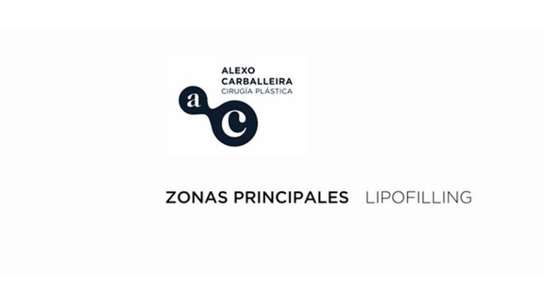 Lipofilling por Dr. Alexo Carballeira