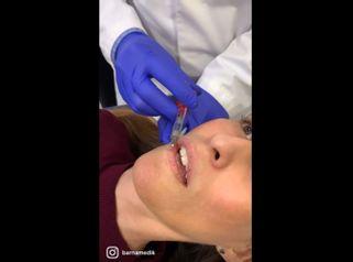 Aumento de labios - Clínica BarnaMedik