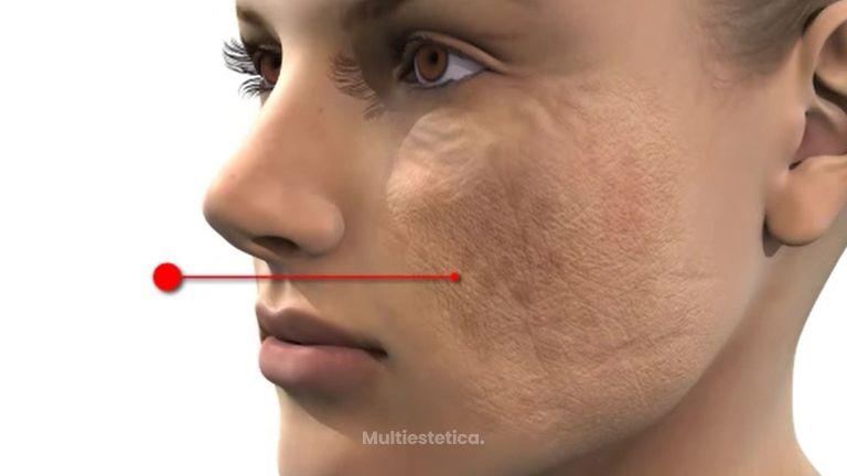 Envejecimiento de la piel y tratamiento