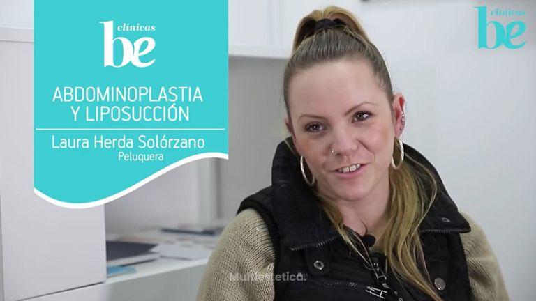 Abdominoplastia y Liposucción. Mi experiencia y resultados con Clínicas Be