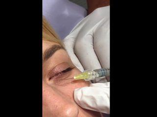 Eliminación de las ojeras - Policlínica Cume