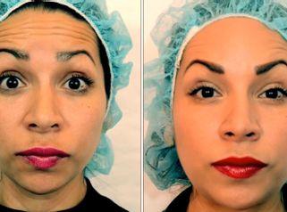 CLINICAS DH Clínicas Médico - Eliminar arrugas