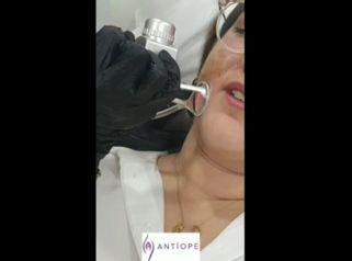 tratamiento con LASER CO2 de cicatrices de acné - Doctora Barba Martínez