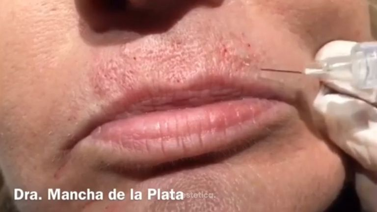 Tratamiento de arrugas periorales con técnica blanching