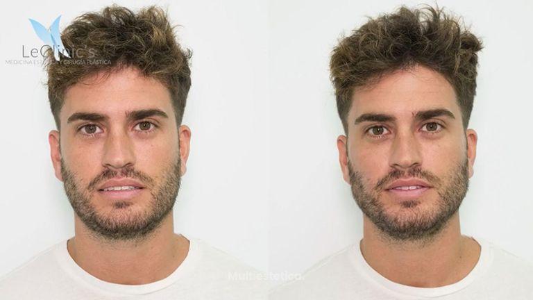 Masculinización facial en LeClinic's