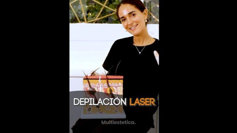 Depilación láser - Imebelle