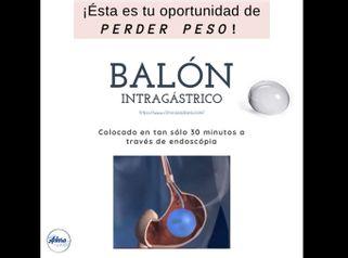 Balón gástrico - Adara Clínicas