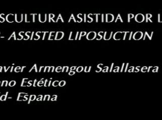 Laserlipolisis - Dr. Armengou (Modelación Corporal)