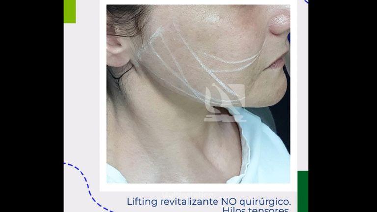 Hilos tensores faciales - Centro Clínico Quirúrgico Aranjuez