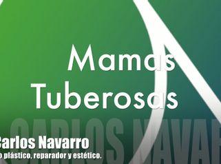 Mama Tuberosa