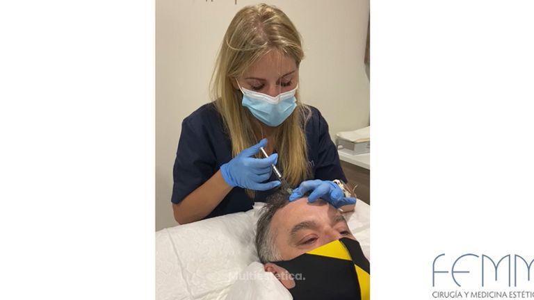 Mesoterapia capilar - Dra. Ángela Hermosa