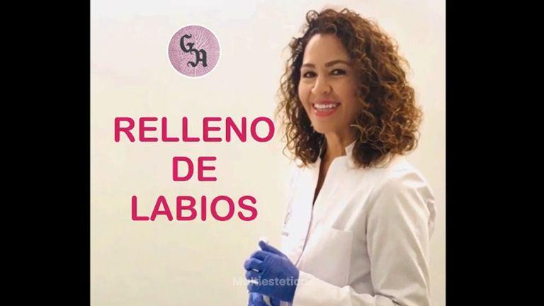 Aumento de labios - Dra. Gracia Alonso