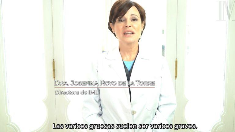 Tratamiento de varices - Instituto Médico Láser -IML-