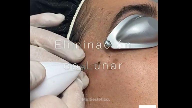 Lunares - Clínica De Medicina Estética Córdoba