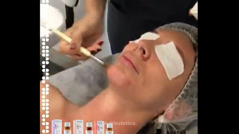 Peeling - Doctor Beltrán