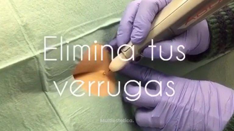 Eliminación de verrugas - Clínica Dra Rigo