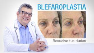 La blefaroplastia