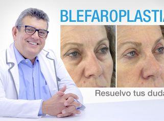 Blefaroplastia por el Dr. Cardona