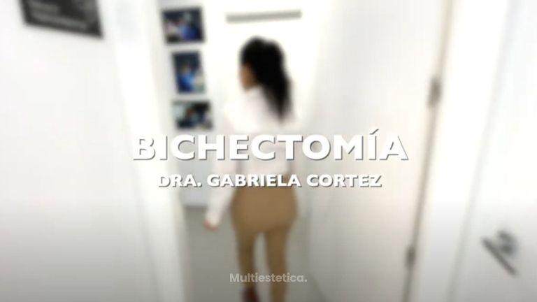 Bichectomía - Aura Clínica