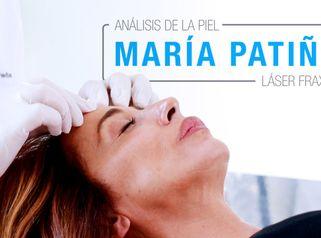 Rejuvenecimiento Facial de María Patiño