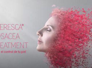 Tratamiento Rosácea - Clínica Openderma