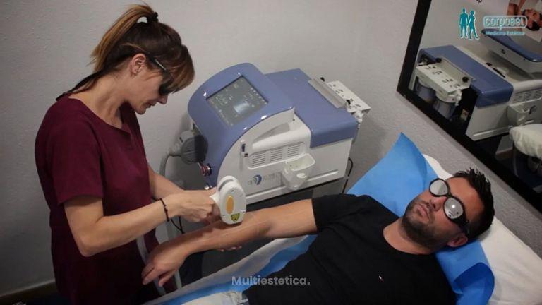Testimonio de tratamiento de depilación Masculina en Corpobel