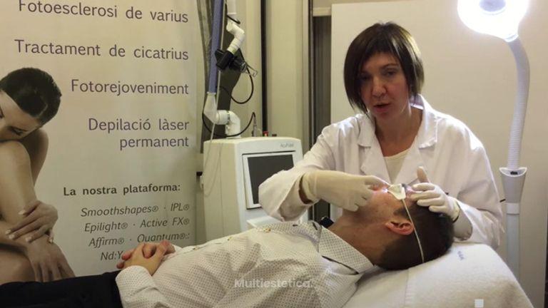 ¿Cómo es el tratamiento de las cicatrices de acné con láser CO2?